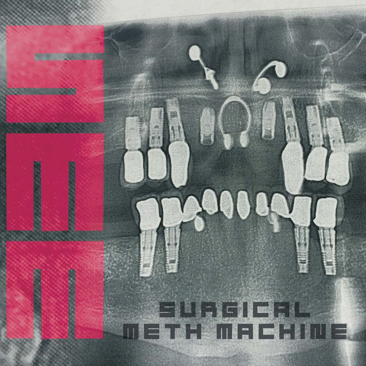 Surgical Meth Machine - Surgical Meth Machine - Artwork